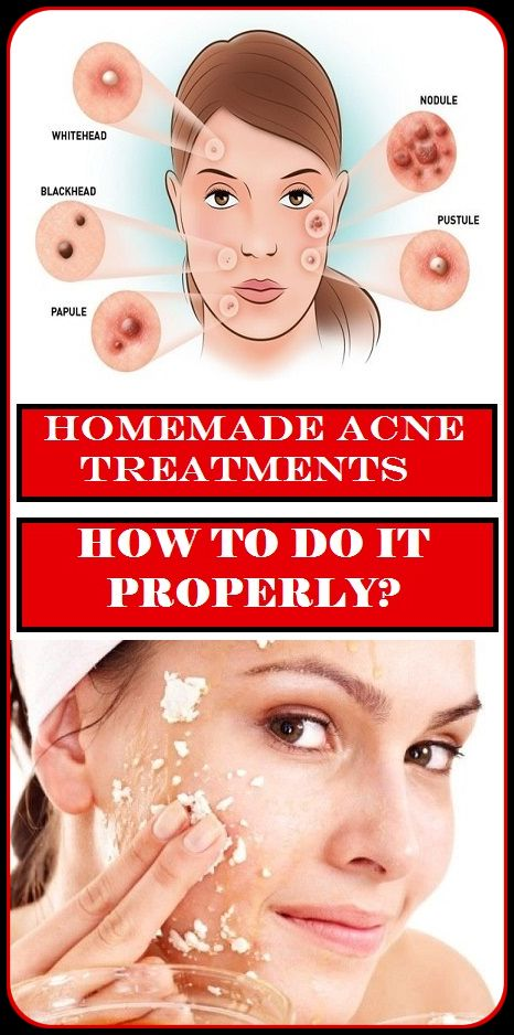 Natural adult acne cures