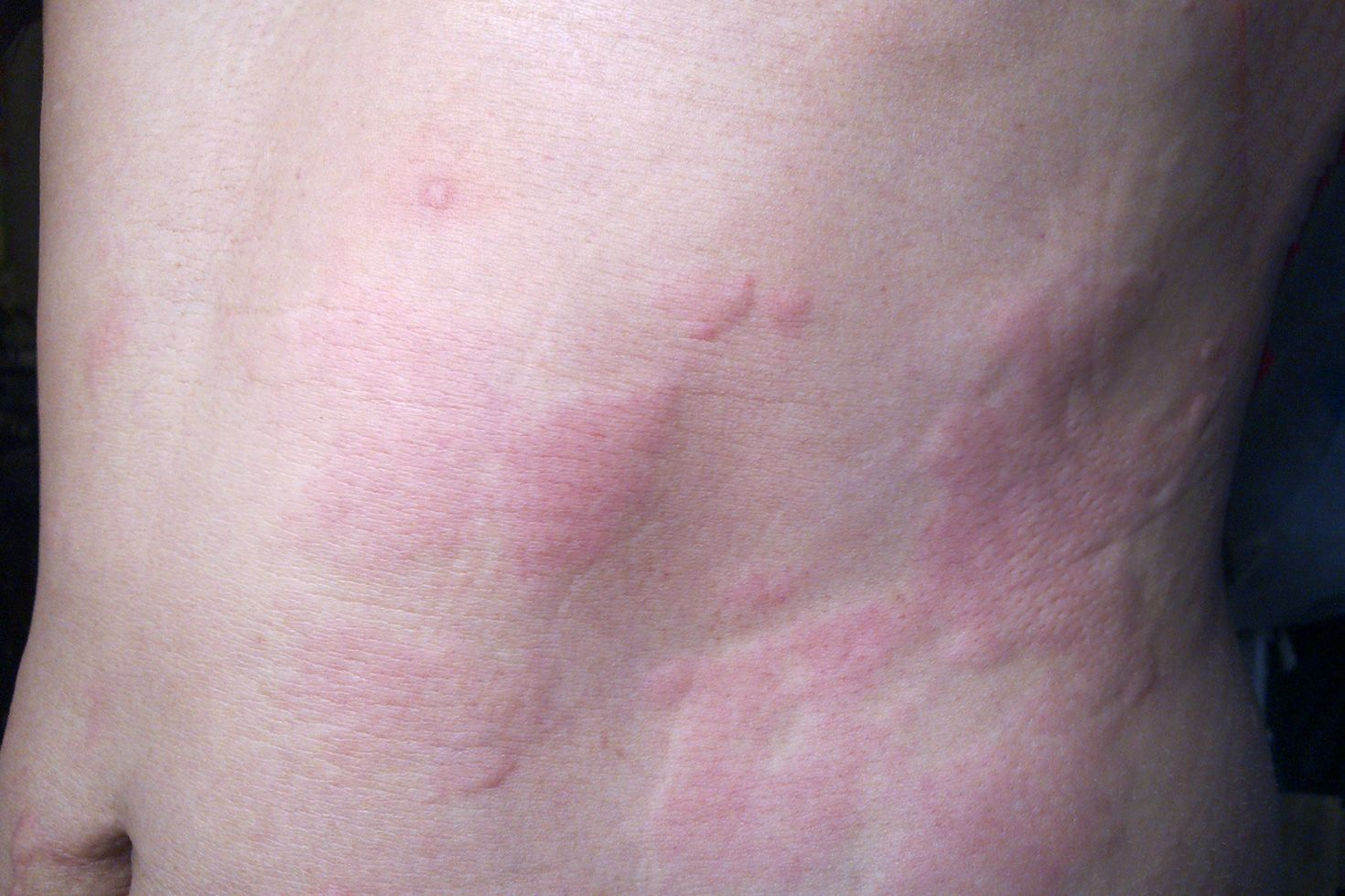 1 week after sex rash vagina
