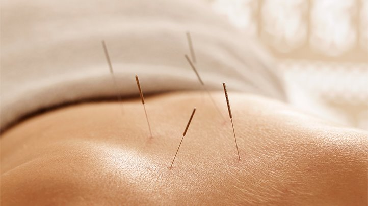 Acupuncture sex