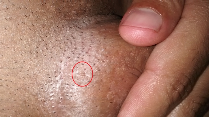 Can bumps be mistaken for genital warts