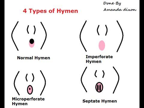 Septate hymen and sex