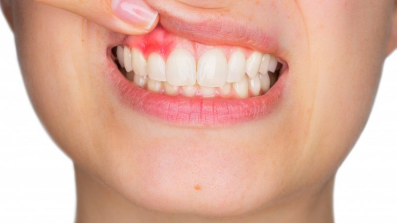 Electric toothbrush better for receding gums